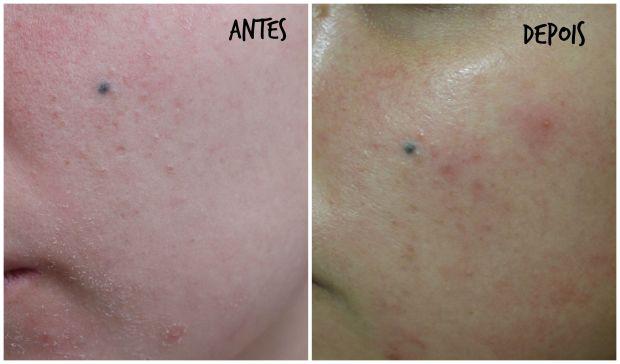 differin tratamento antes e depois acne