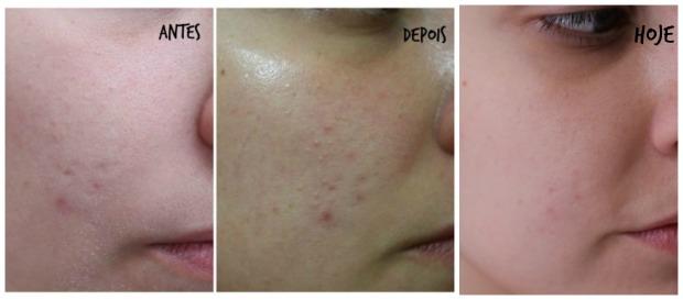tratamento acne achilla lima