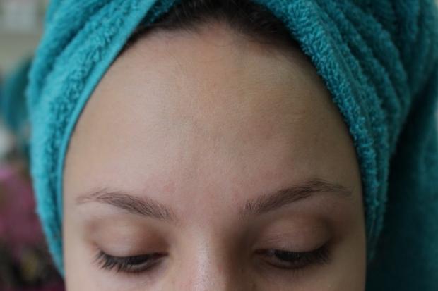 tratamento acne e cravos achilla lima differin papuless hidratante facial neutrogena oil free